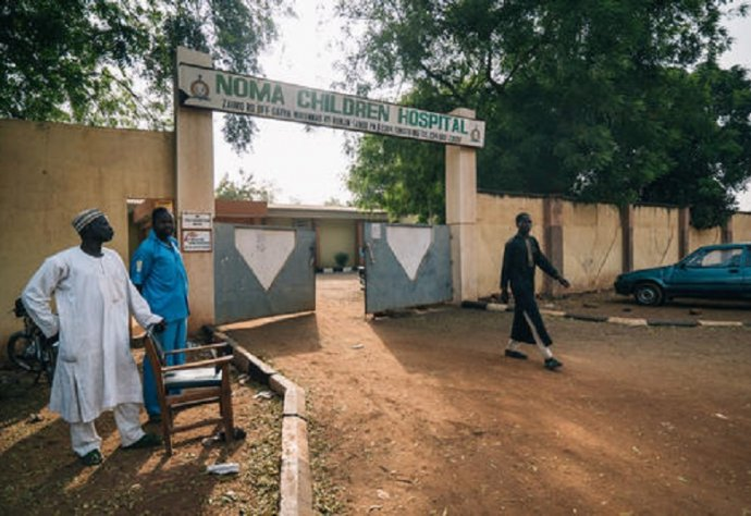 The Sokoto Noma Hospital, in north-west Nigeria, is the only one in the country dedicated to this neglected and devastating infection. Photo: Claire Jeantet - Fabrice Caterini/Inediz