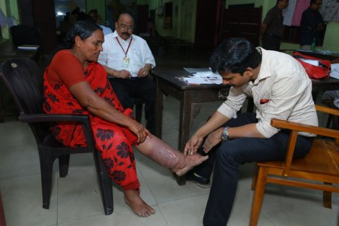 Filariasis - a lifetime burden that threatens livelihood