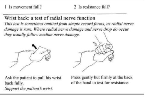 Wrist back test - line drawing by Jean Watson (Essential Action to Minimize Disability in Leprosy Patients, Jean M Watson, second edition,1994)