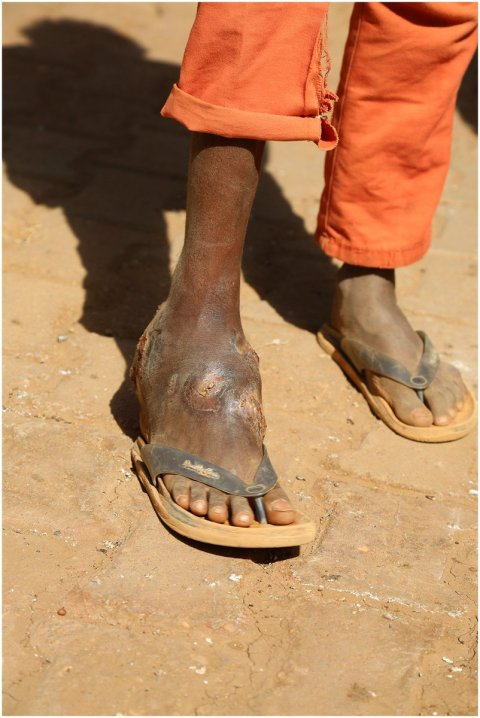 Mycetoma affects the foot of a young boy